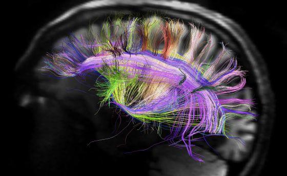 20120411103450-cerebro-e-curvas-de-fibras-neuronais.jpg