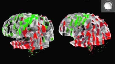 20120920084752-cerebro-644x362.jpg