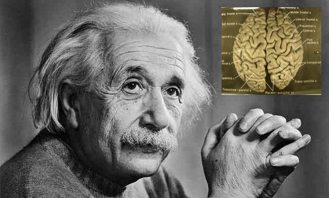 20170412100150-cerebro-de-einstein.jpg